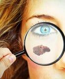 Карцинома кожи стоковые изображения