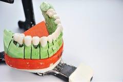 керамические введенные модельные зубы протеза стоковое изображение rf