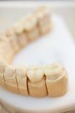 керамические короны Стоковая Фотография RF