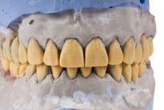 Керамические dentures изолированные на белизне стоковые фото