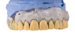 Керамические dentures изолированные на белизне стоковые изображения