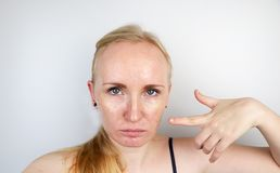 Кожа маслообразных и проблемы Портрет белокурой девушки с угорь, маслообразной кожей и пигментацией стоковое фото