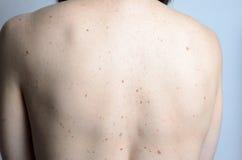 Кожа на задней части женщины с молями Стоковая Фотография