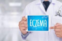 Кожа пациента, проблема eczema дерматита ECZEMA с много Стоковая Фотография