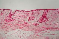 Кожа с фолликулом под микроскопом Стоковые Изображения