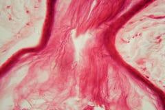 Кожа с фолликулом под микроскопом Стоковое Изображение RF