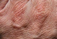 кожа 20 Стоковые Фотографии RF
