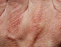 кожа 21 Стоковое Изображение RF