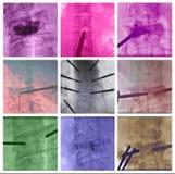 Коллаж хребтовых позвонков удаления радиочастоты красочный Стоковое фото RF