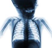 Комод рентгеновского снимка фильма нормальный младенца Верхний - половина тела Вид спереди стоковое фото rf