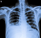 Комод x Рэй человеческого тела с правым плюральным излиянием Стоковое Изображение RF