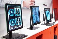 Компьютеры с мониторами для медицины стоковые фото