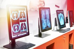 Компьютеры с мониторами для медицины стоковое фото