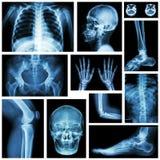 Комплект части рентгеновского снимка множественной человека скелетная система стоковая фотография rf