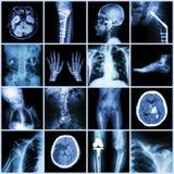 Комплект части рентгеновского снимка множественной человеческого, множественного заболевания, протезного, хирургии Стоковое фото RF