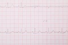 cardiogram Стоковое Фото