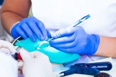 Конец-вверх зубов обслуживания дантиста Стоковое Изображение RF