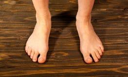Конец вверх по женщине с зудящими ногами использует его большой палец ноги для того чтобы поцарапать его другая нога на деревянно стоковое изображение