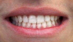 Рот и зубы Стоковые Изображения RF