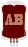 Контейнер с оказывающей экономическую помощь кровью AB бесплатная иллюстрация