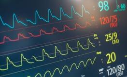 Контролируйте удар тарифа сердца Стоковые Изображения RF