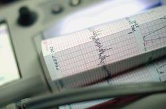 Контрольное оборудование удара сердца с диаграммой Стоковые Изображения