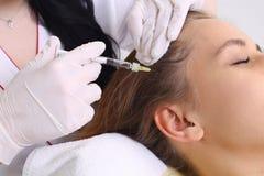 Концепция выпадения волос стоковые фотографии rf