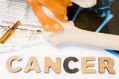 Концепция рака кости Анатомическая форма косточки и соединения бедренной кости лежит около рака слова окруженного комплектом испы Стоковые Фото