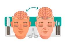Концепция трансплантации мозга Бесплатная Иллюстрация