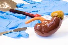 Концепция хирургии урологии почки и надпочечника Модель почек и надпочечника около скальпеля, хирургических перчаток и анализа кр стоковое фото