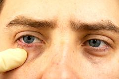 Конюнктивит, уставшие глаза, красные глаза, заболевание глаза стоковая фотография rf
