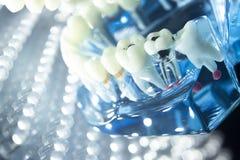 Корень зубоврачебных зубов модельный Стоковые Изображения RF