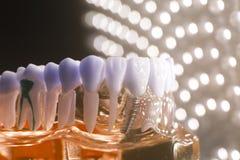 Корень зубоврачебных зубов модельный Стоковое Изображение
