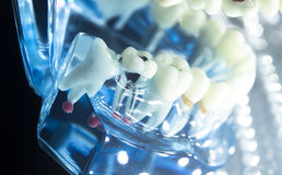 Корень зубоврачебных зубов модельный Стоковое фото RF
