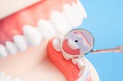 Костоеда зуба зубоврачебная на denture Стоковые Фотографии RF
