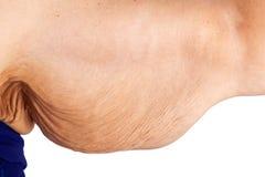 Костюм кожи - весьма потеря веса стоковая фотография