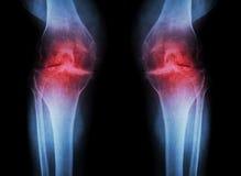 Колено остеоартрита (колено) OA (рентгеновский снимок фильма оба колено с артритом соединения колена: узкий космос соединения кол стоковые фотографии rf