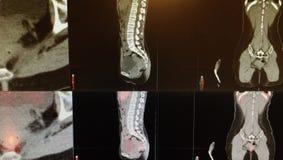 Колоректальный коллаж диагностик карциномы стоковое изображение rf