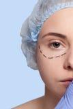 Красивые линии прокалывания деятельность молодой женщины пластической хирургии Стоковая Фотография