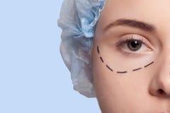 Красивые линии прокалывания деятельность молодой женщины пластической хирургии Стоковые Изображения RF