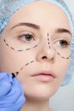 Красивые линии прокалывания operatio молодой женщины пластической хирургии Стоковая Фотография RF