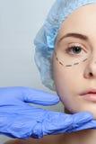 Красивые линии прокалывания operatio молодой женщины пластической хирургии Стоковое Изображение