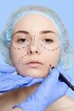 Красивые линии прокалывания operatio молодой женщины пластической хирургии Стоковое Изображение RF