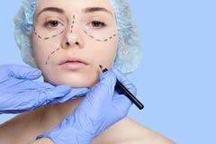 Красивые линии прокалывания operatio молодой женщины пластической хирургии Стоковые Изображения RF