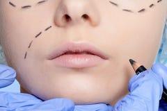 Красивые линии прокалывания operatio молодой женщины пластической хирургии Стоковая Фотография