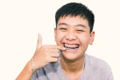 Красивый усмехаться красивого мальчика указывая к зубам связывает зубоврачебное Стоковое Изображение