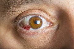 Красные глаза bloddshot Стоковая Фотография RF