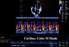 Красочное изображение монитора ультразвука сердечно стоковые фотографии rf