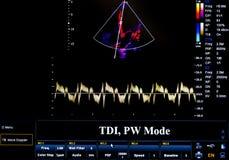 Красочное изображение монитора ультразвука TDI, режим PW Стоковые Изображения RF