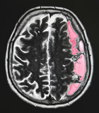 Кровоизлияние в мозг Стоковое Изображение